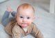 Bebeğin Vücudunda Oluşan Kırmızı Noktalar Nasıl Açıklanır?